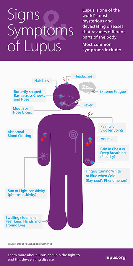 Signs-Symptoms-of-Lupus-Foundation-of-America-Chronic-Autoimmune-Disease-Facts
